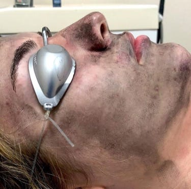 peeling quimico tratamiento