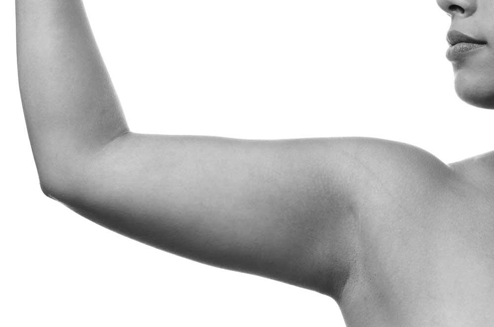 flacidez muscular brazo