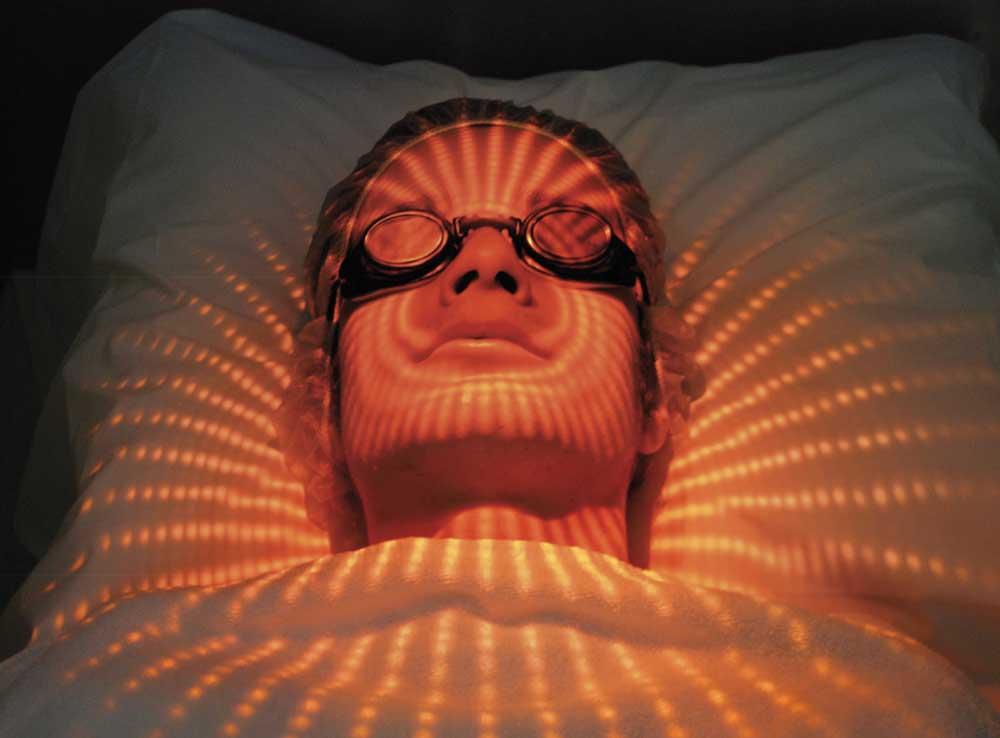 terapia fotodinamica acne pdt